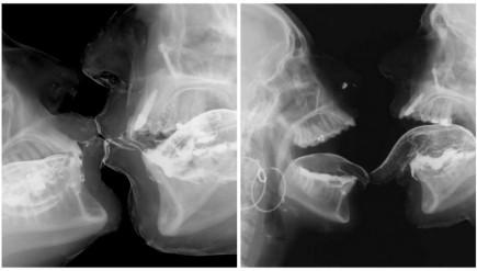 radiographie des rapports sexuels
